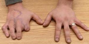 Nozni prsti